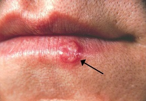 A NEW DRUG FOR THE PREVENTION AND TREATMENT OF HERPES SIMPLEX VIRUS (HSV-1)